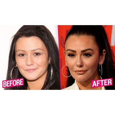 jersey shore before and after